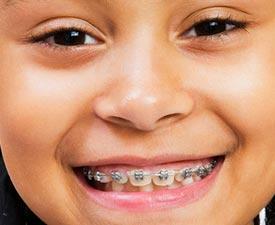children-orthodontics