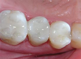 White (Tooth Colored) Fillings