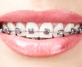 Children's & Adult Orthodontics